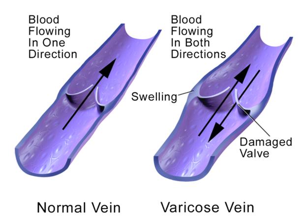 Natural ways to treat varicose veins